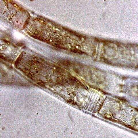 Oedogonium capillare vista al microscopio